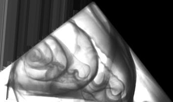 tomografia 3d